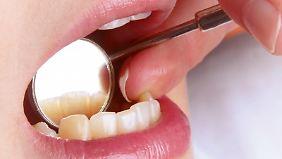 Wer schlechte Zähne hat, sollte sich rechtzeitig um guten Schutz kümmern.