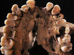 """14000 bis 15.000 Jahre alter Oberkiefer eines Frühmenschen mit verschiedenen Erkrankungen im Mundraum sowie stark abgenutzten und kariösen Zähnen. Gefunden wurde das Gebiss in der """"Grotte des Pigeons"""" bei Taforalt in Marokko."""