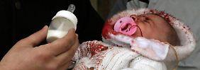 Horrorzustände in Aleppos Krankenhäusern: Ärzte müssen Gliedmaßen notamputieren