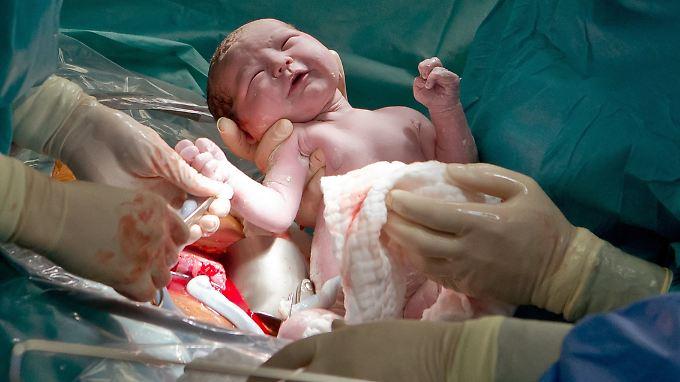 Laut einem Bericht der Techniker Krankenkasse kommt beinahe jedes dritte Kind per Kaiserschnitt zur Welt.
