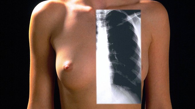 COPD hebt langsam die Funktion der Lunge auf.