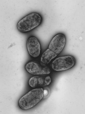 Elektronenmikroskopische Aufnahme des Pestbakteriums Yersinia pestis.