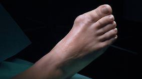 Großer Zeh auf schiefer Bahn: Schmerzhafter Hallux Valgus: Ursachen und Risikofaktoren