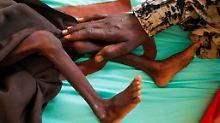 Hunderte Millionen Menschen hungern: Weshalb wir umdenken müssen