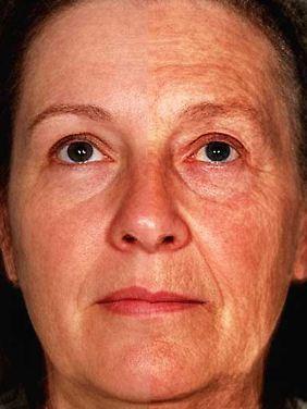 Die Fotomontage zeigt mittels Morphing auf der linken Seite das durchschnittliche Aussehen von zwölf jeweils 47Jahre altenFrauen, rechts das von zwölf jeweils 70 Jahre alten Frauen.