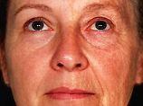 Suche nach Ursachen des Alterns: Genvariante lässt älter aussehen