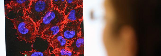 Mikroskop-Aufnahme von Melanom-Zellen (schwarzer Hautkrebs).