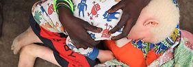 Aberglaube und Vorurteile: Die unmenschliche Jagd auf Albinos