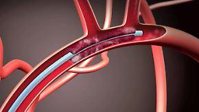 Neue Therapie bei Schlaganfall: Thrombektomie soll deutschlandweit eingeführt werden