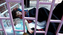 Nach Ausbruch der Cholera: Bürgerkriegsland Jemen erklärt den Notstand