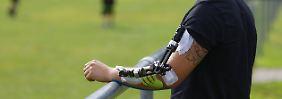 Verein zahlt nicht immer: Sportunfall: Was ist versichert und was nicht?