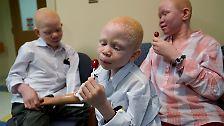 Opfer von Hexerei: Neue Hoffnung für verstümmelte Albino-Kinder