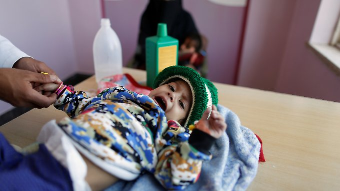 Ein Junge wird in Sanaa wegen Unterernährung medizinisch versorgt.