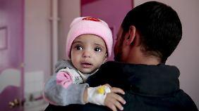 Stellvertreterkrieg im Jemen: 1,8 Millionen Kinder sind akut unterernährt