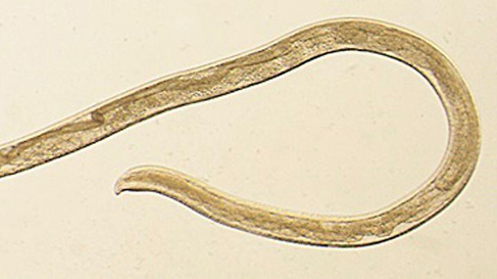 Das Bild zeigt den Augenwurm Thelazia gulosa.