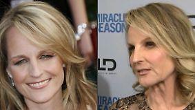 Promi-News des Tages: Helen Hunt schießt mit Botox übers Ziel hinaus