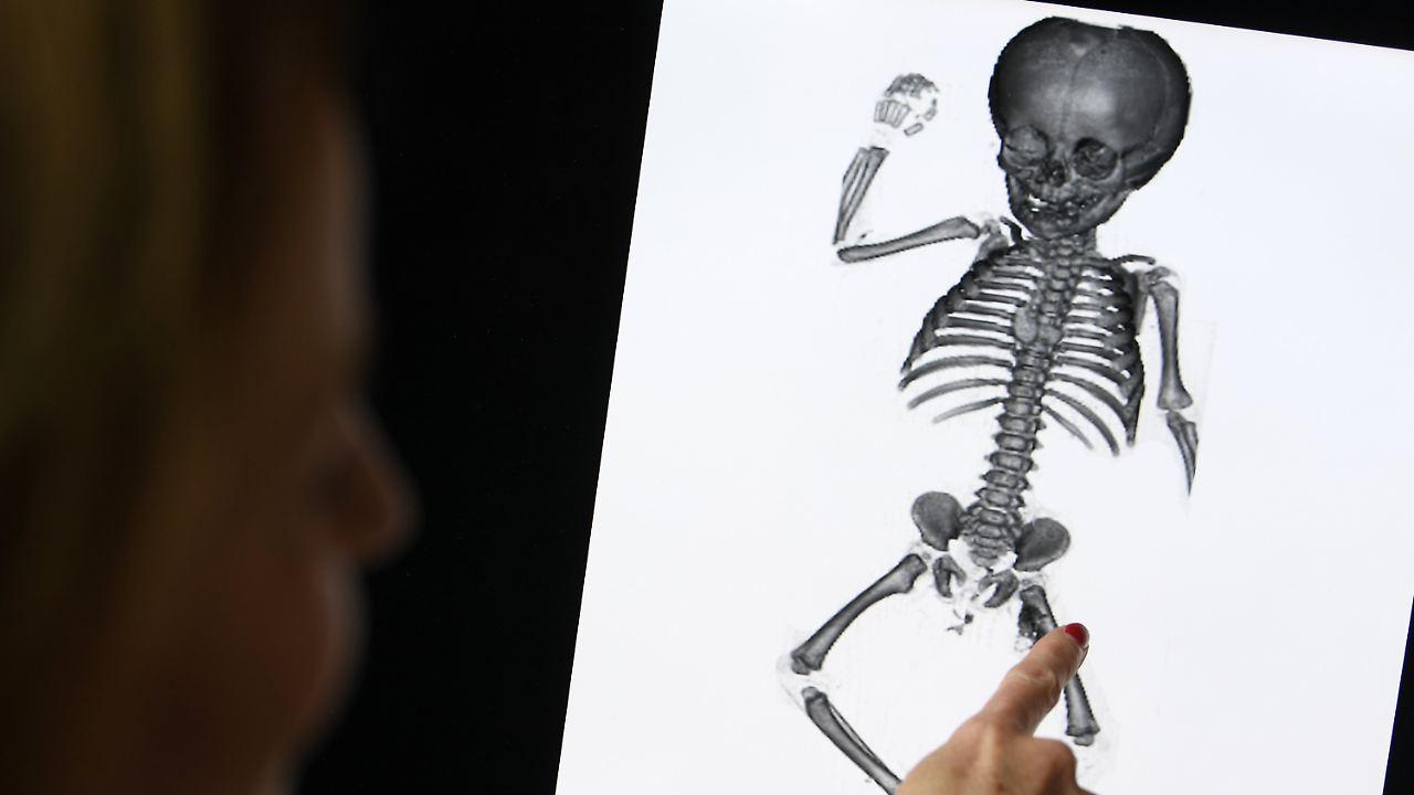 Charmant Seiten Hand X Ray Anatomie Fotos - Menschliche Anatomie ...