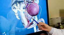 Meilenstein dank Laserfasern: Dresden testet neuartige Prostatakrebs-OP