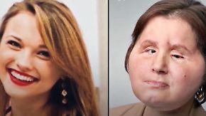 Riskante OP nach Suizidversuch: Ärzte transplantieren 21-Jähriger vollständiges Gesicht