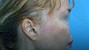 Im Unterarm gezüchtet: Ärzte transplantieren 3D-gedruckte Nase