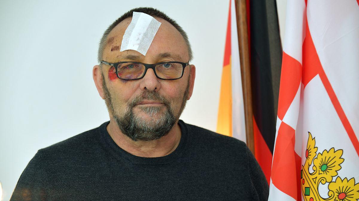 Radfahrerin spuckt AfD-Politiker Magnitz ins Gesicht