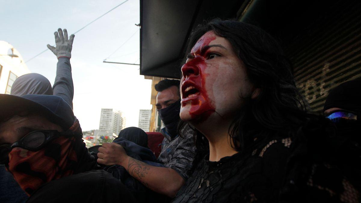 Chilenen zahlen mit Blut und Augenlicht