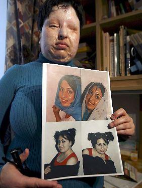 Ameneh Bahrami zeigt Bilder von sich aus der Vergangenheit.