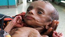 """""""Schlimmste humanitäre Katastrophe der Welt"""": Am Horn von Afrika verhungern die Menschen"""
