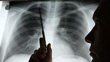 Diagnose Lungenkrebs: Nur wenige überleben die Krankheit.