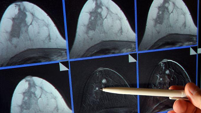Brustkrebs gilt als häufigste Krebserkrankung bei Frauen.