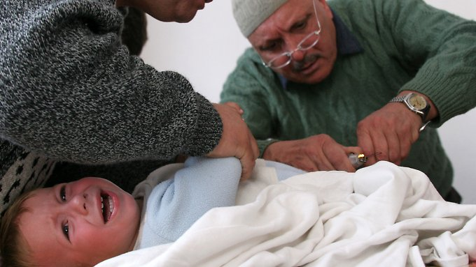 Ohne Betäubung ist die Beschneidung ein brutaler Eingriff.