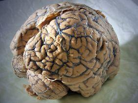 Das Gehirn kann einem manchmal einen Streich spielen.