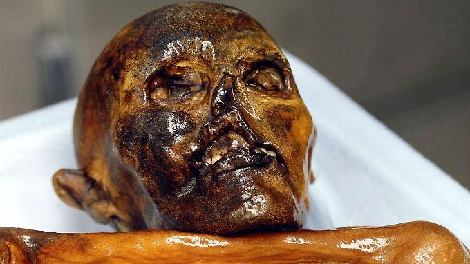 Wissenschaftler berichten, Ötzis Darflora ähnele der eines afrikanischen Kindes.