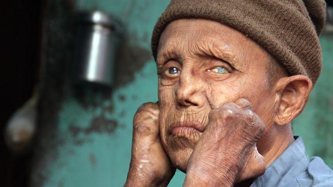 In Europa ist Lepra lange ausgerottet. In Indien zerstört die Krankheit dagegen noch immer das Leben Tausender Menschen.