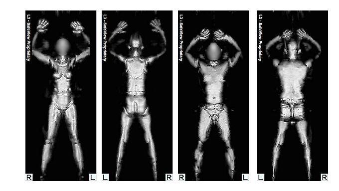 Sie heißen auch Nacktscanner. Fluggäste werden damit bis auf die Haut durchleuchtet.