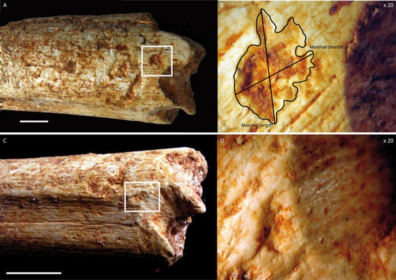 Menschenknochen