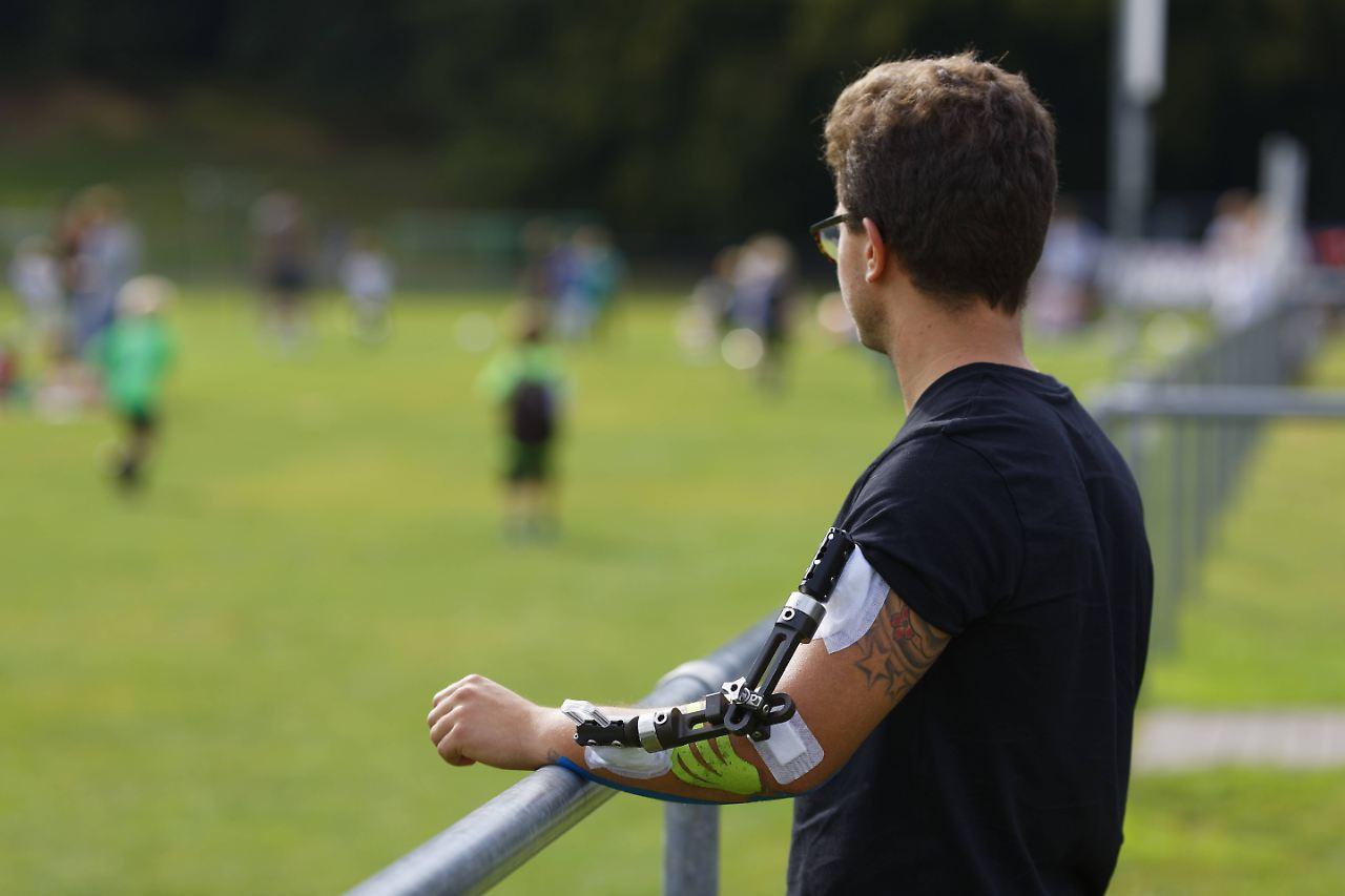 Verein zahlt nicht immer: Sportunfall: Was ist versichert und was ...