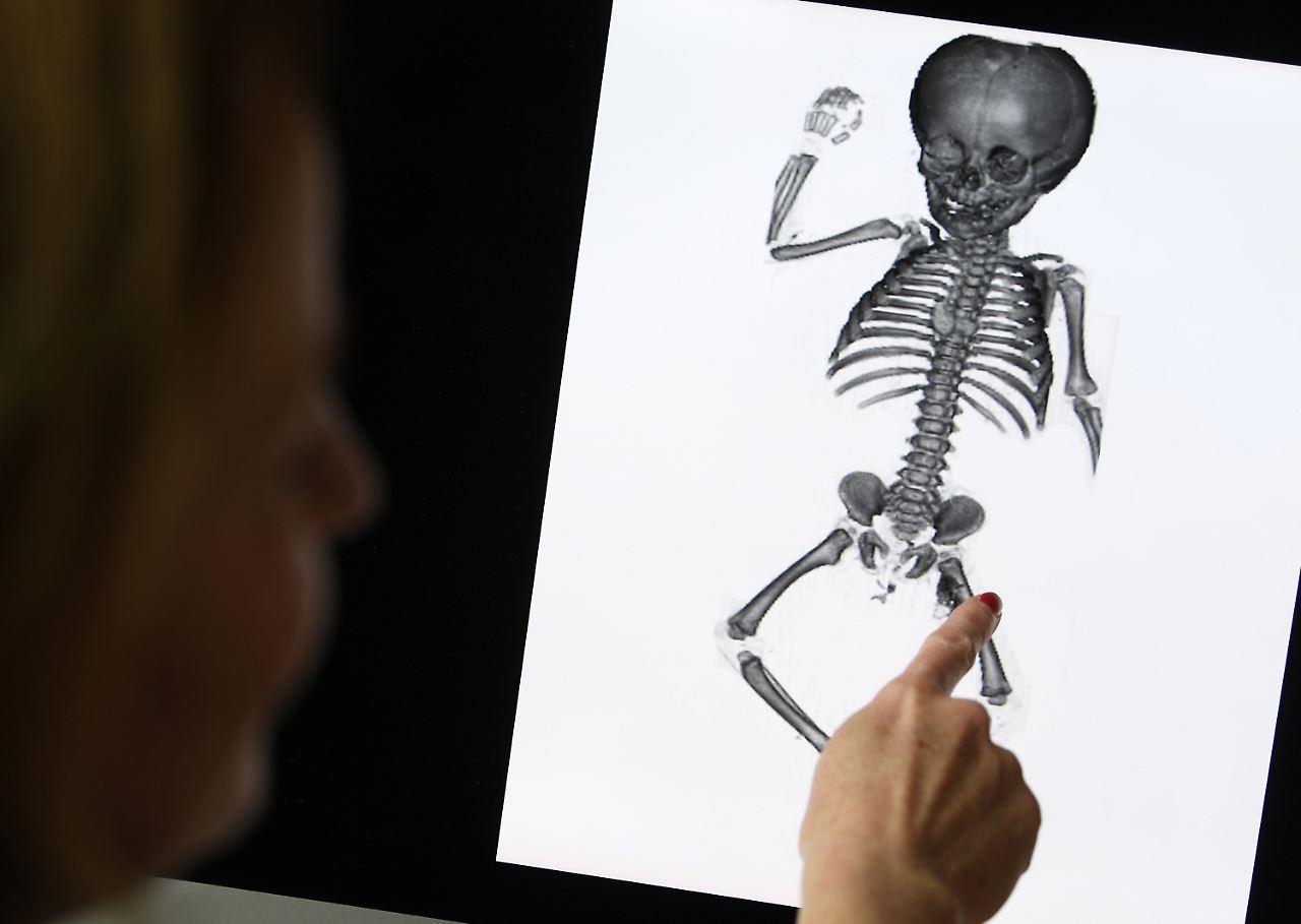 Jahrzehnte in der Anatomie: Vergessene Kinder finden letzte Ruhe - n ...